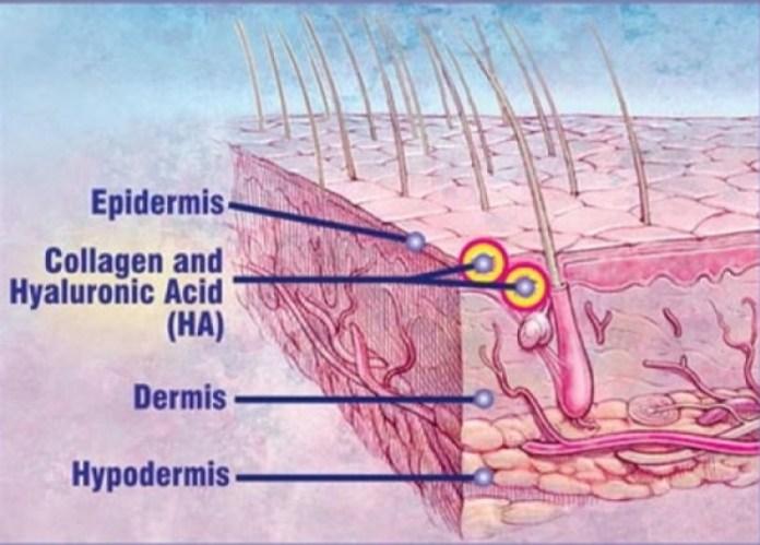 cliomakeup-cnn-filler-problemi-cause-15-collagene