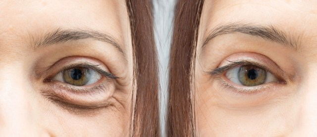 cliomakeup-occhiaie-rimedi-5-steatoblefaron