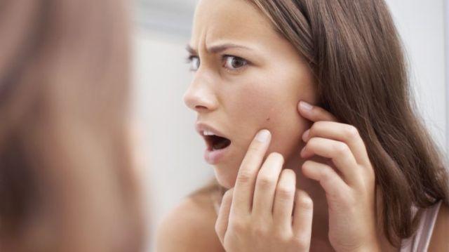 ClioMakeUp-inositolo-acne-vitamina-cura-sostanza-4