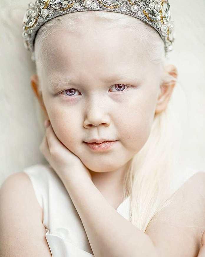 cliomakeup-albinismo-nella-moda-biancaneve-siberiana (3)