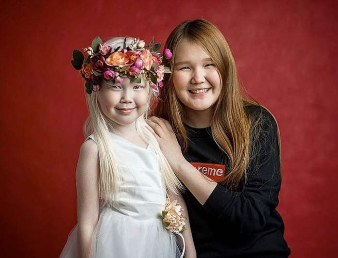 cliomakeup-albinismo-nella-moda-biancaneve-siberiana (6)