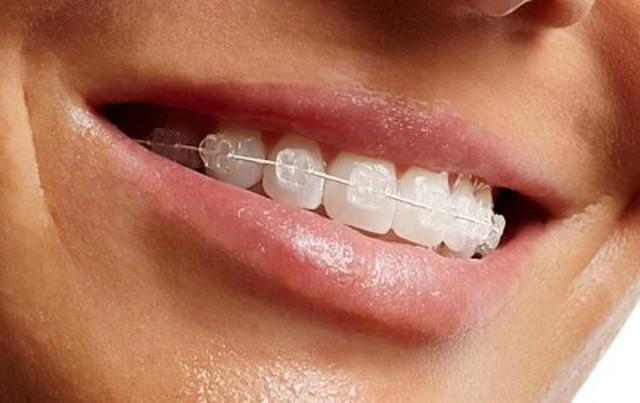 cliomakeup-apparecchio-denti-adulti-ortodonzia-estetica (11)