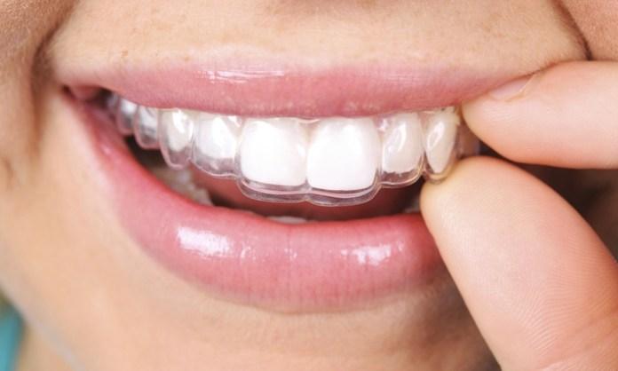 cliomakeup-apparecchio-denti-adulti-ortodonzia-estetica (16)