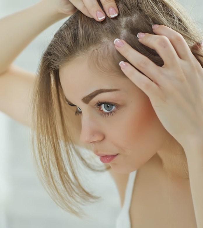 cliomakeup-capelli-che-cadono-rimedi-7-stempiatura-femminile