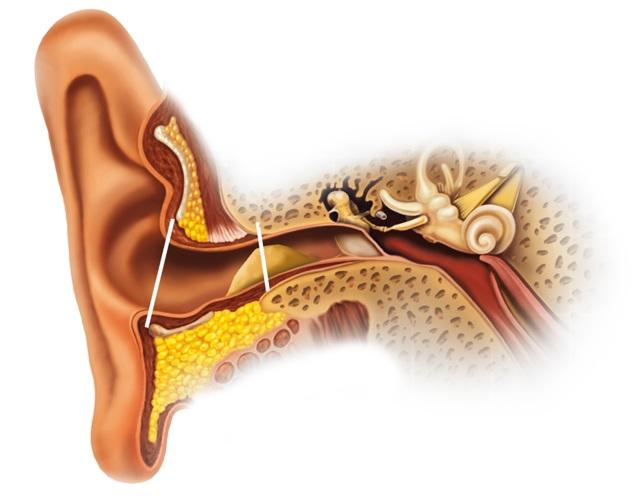 cliomakeup-come-pulire-le-orecchie-senza-cotton-fioc (12)