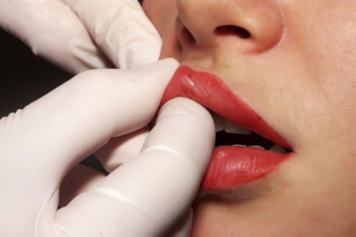 cliomakeup-filler-labbra-chirurgia-5-acido-ialuronico