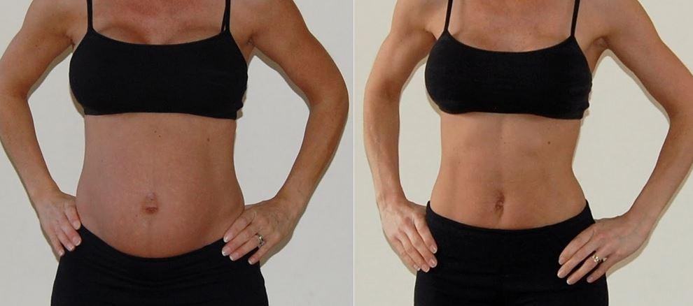 perdere il grasso addominale dopo il parto