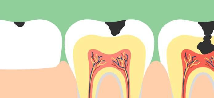 cliomakeup-come-lavare-i-denti-in-modo-corretto-7