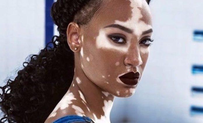 cliomakeup-foto-vitiligine-amy-deanna
