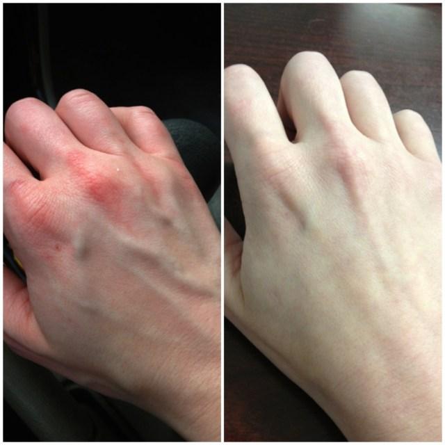 cliomakepp-cura-mani-freddo-5-pelle-arrossata-mani