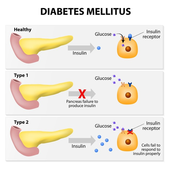 cliomakeup-diabete-infantile-2-pancreas.jpg