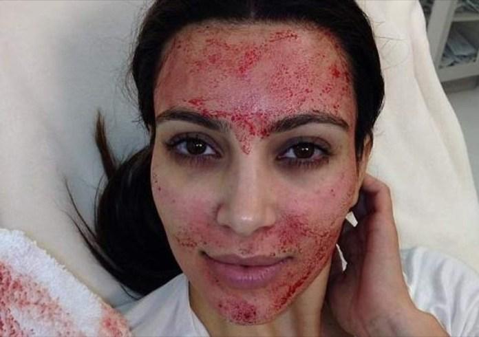 cliomakeup-tatuaggio-elimina-occhiaie-stranezze-beauty-4-kim-kardashian-vampire-facial