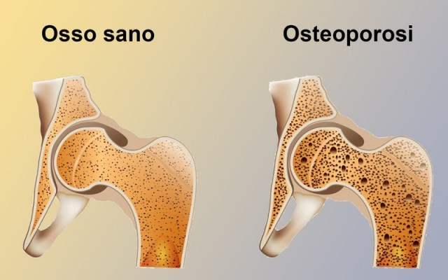 cliomakeup-alimenti-donne-8-osteoporosi