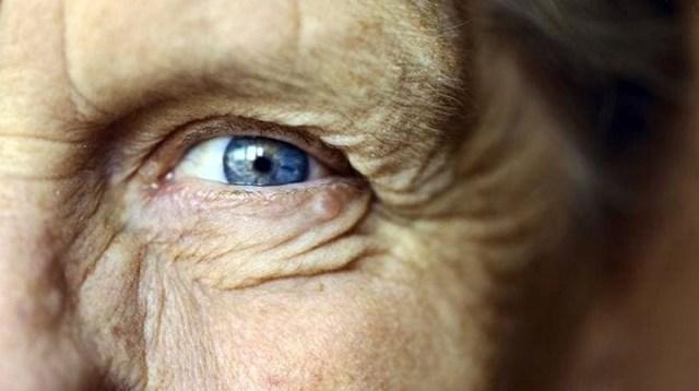 cliomakeup-alimenti-sistema-immunitario-21-degenerazione-maculare-senile