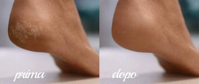 cliomakeup-prepare-piedi-estate-9-scholl-effetto