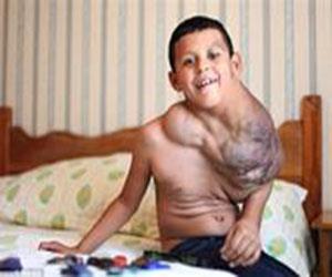 أخبار 24 | طفل يتناول الفياغرا ليبقى على قيد الحياة