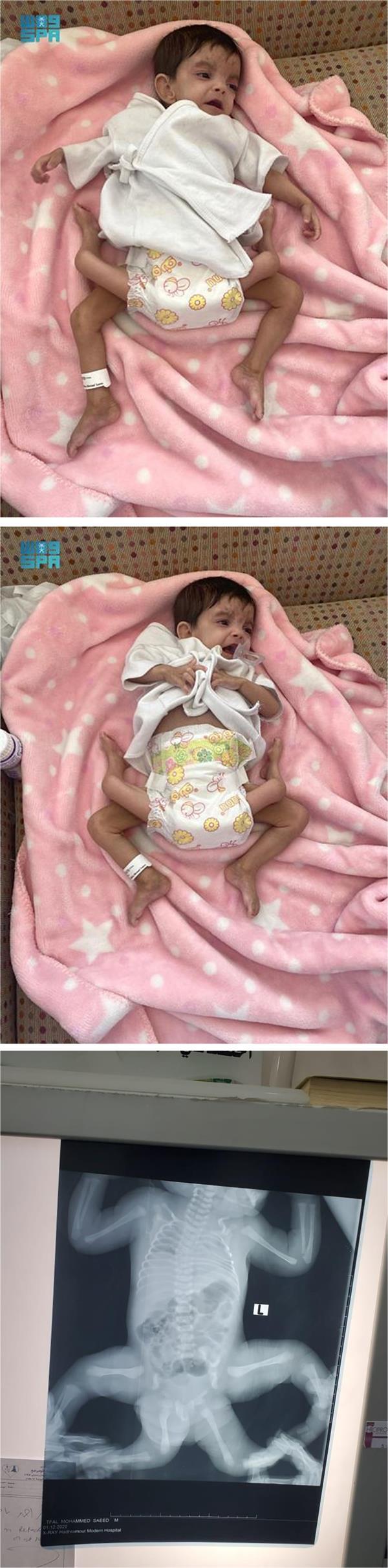 """التوأم الطفيلي اليمني """"عائشة"""""""
