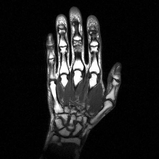 МРТ кисти руки - что покажет, как проводят
