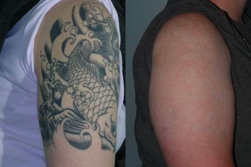 Laser tattoo removal. 6 Tattoo removal lasers including ...
