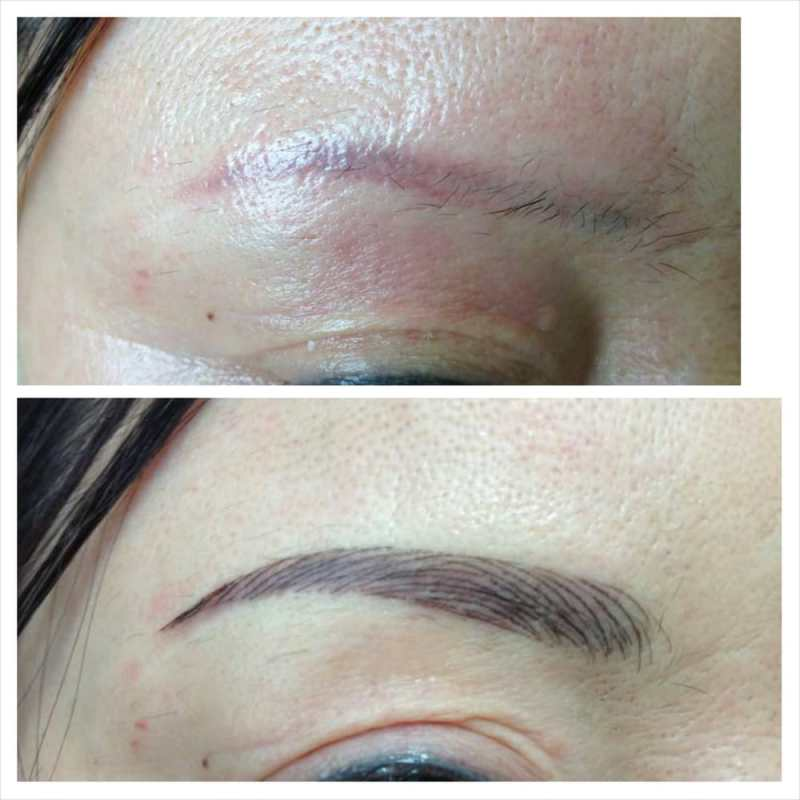 Semi Permanent Makeup Tattoo Removal Makeupview Co