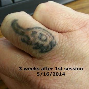 new life laser 21 photos tattoo removal 411 e iris dr berry hill nashville tn united