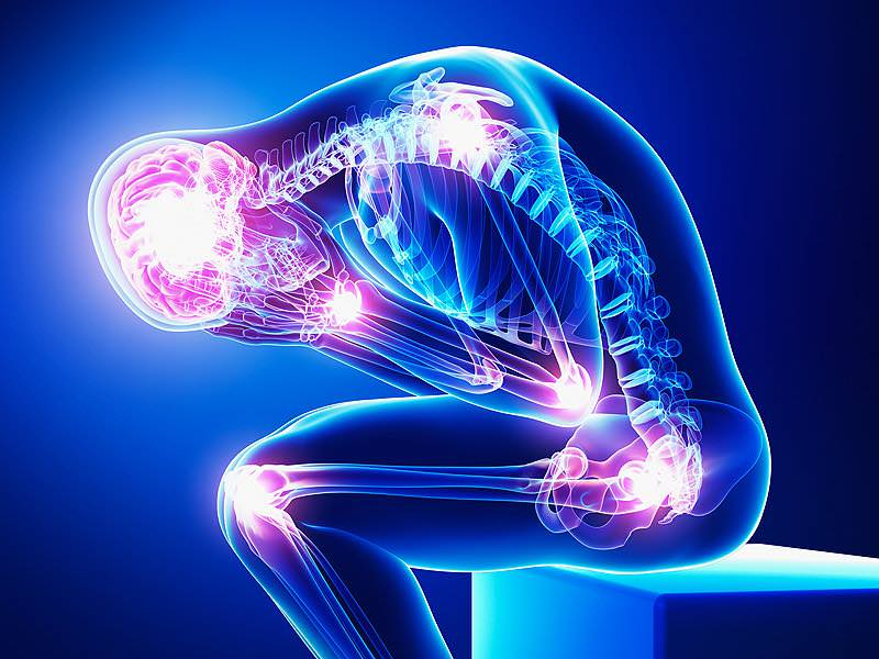 Resultado de imagem para dor cronica