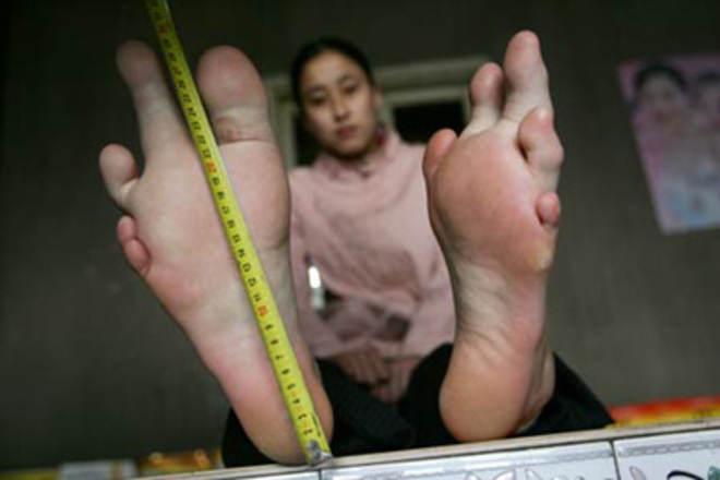 Shen Xiaojing's Unusual Giant Feet