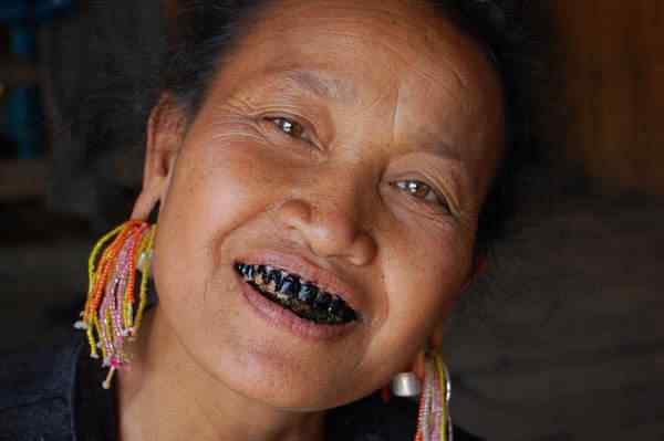 Ann-woman-black-teeth
