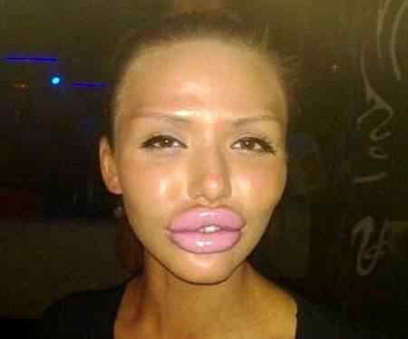 Ugly-Lips-Women-FAIL