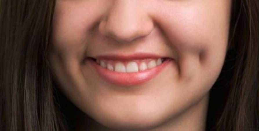 Face dimple