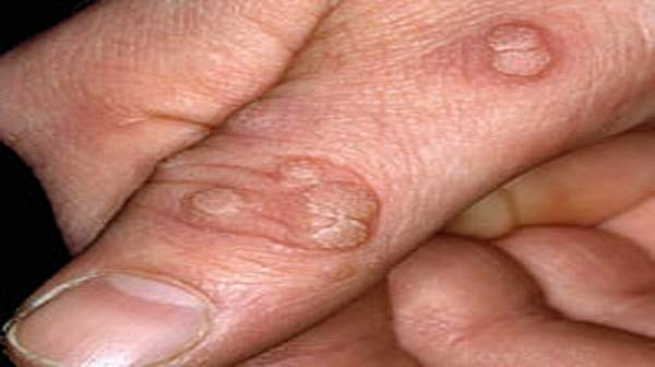 Warts and Skin Conditions- Types, Treatments and Causes