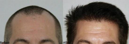 Alvi Armani hair transplant results