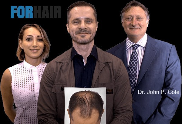 Samumed WNT Pathway Activator Hair Loss Treatment