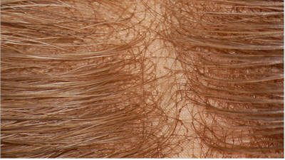 Hair replacement system consumer guide