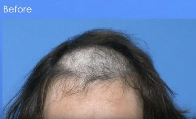 Artificial Hair Fibers Implant