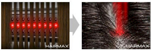 HairMax Patented Hair Regrowth Device