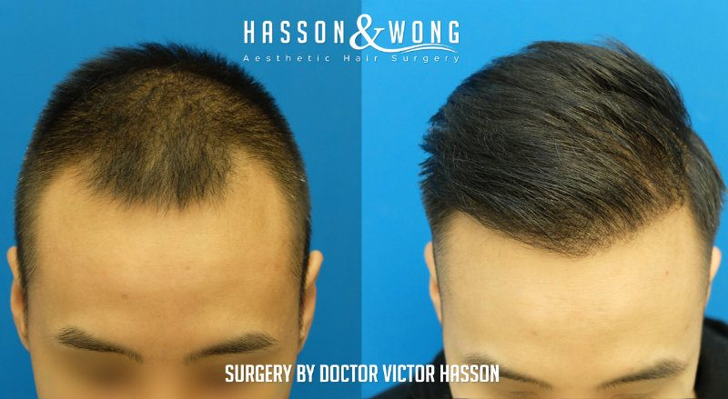 Best Time To Get Hair Transplant Hairsite Com