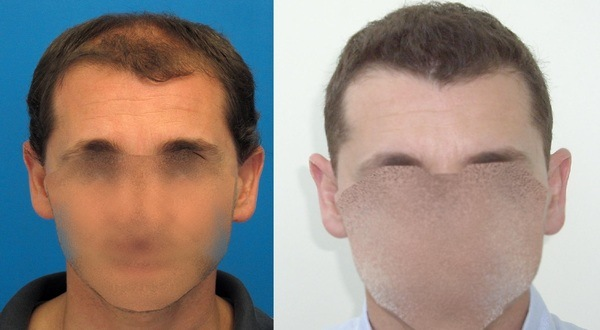 Hasson & Wong Hair Transplant Result