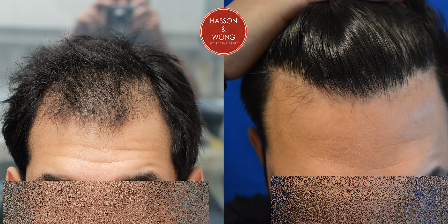 hair transplant boston