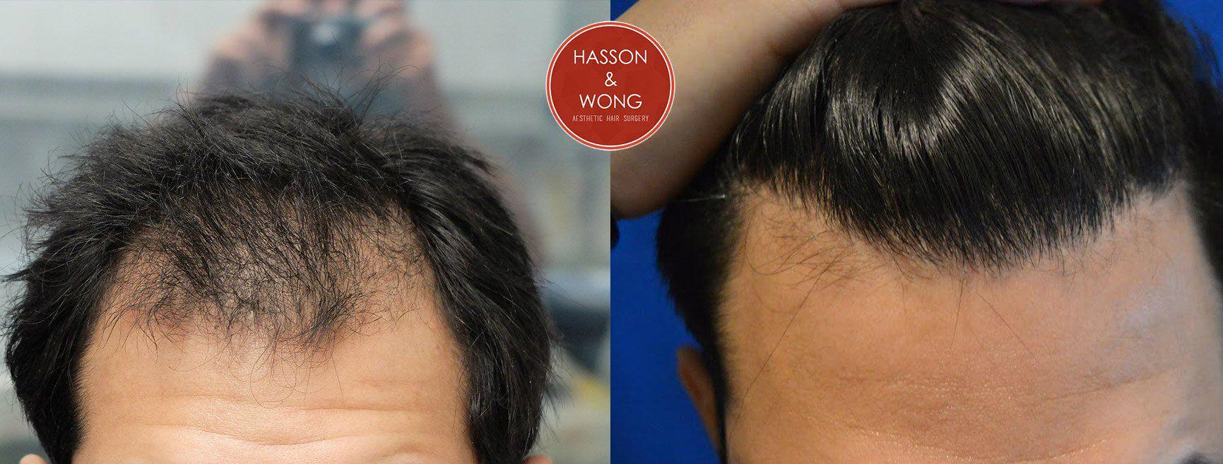 hasson wong hair transplant haircut