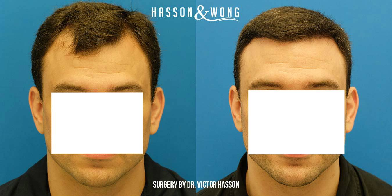 Hasson and Wong hair transplant