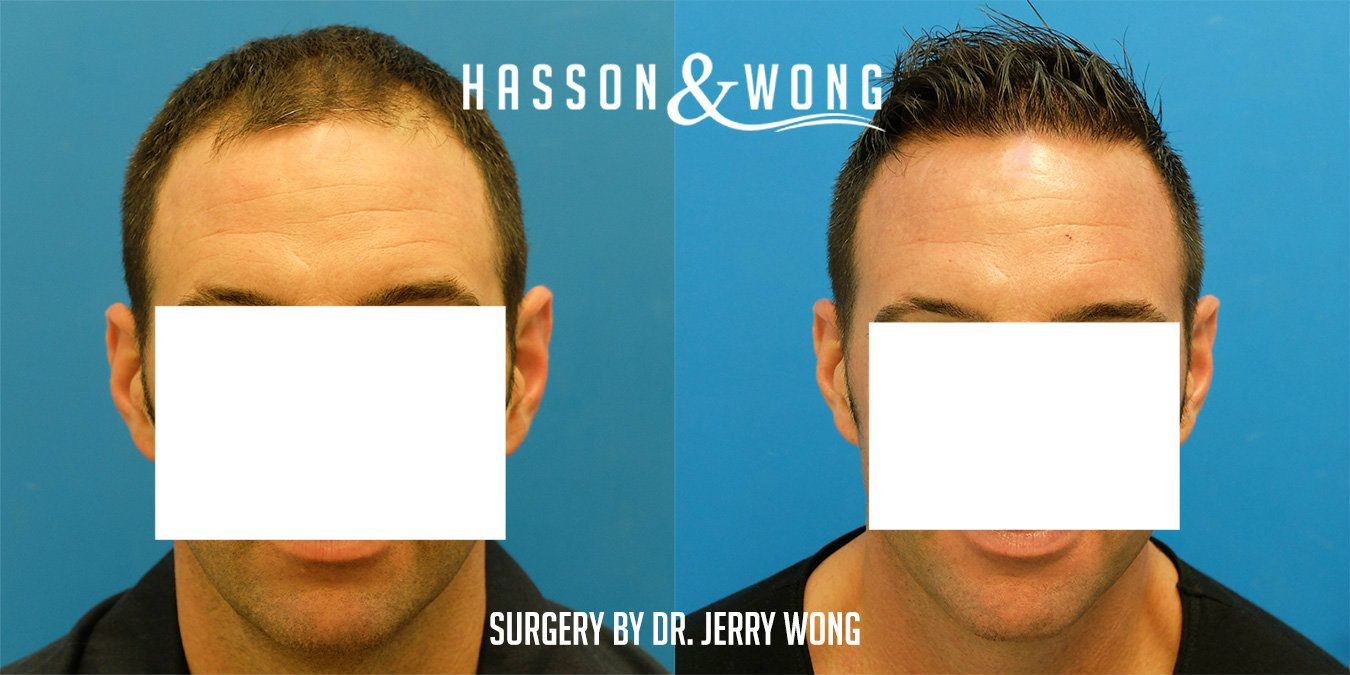 Hasson & Wong Hair Transplant Vancouver Canada