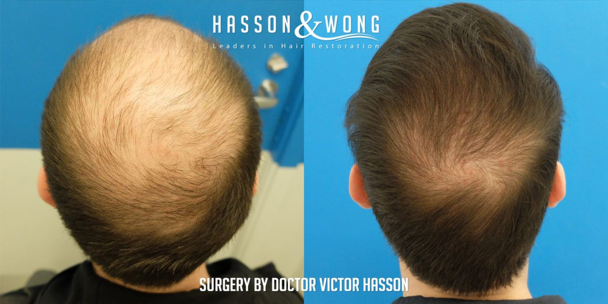 Hasson & Wong FREE Consultations for Hair Loss
