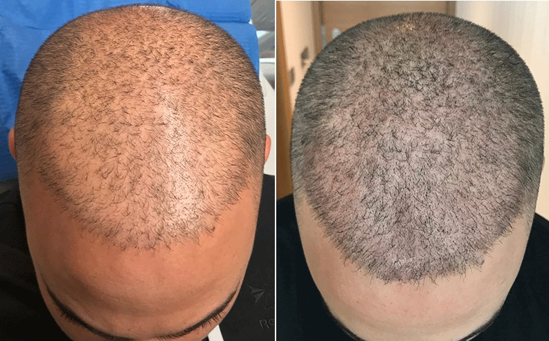 scalp micropigmentation scalp trichopigmentation