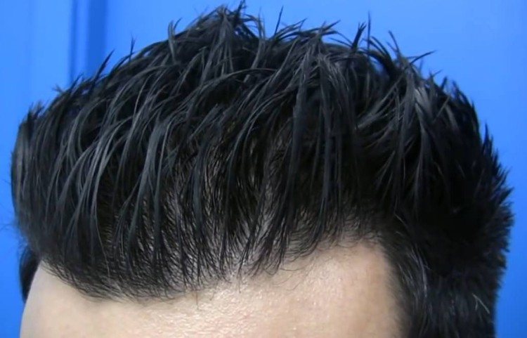 Celebrity Hair Loss News