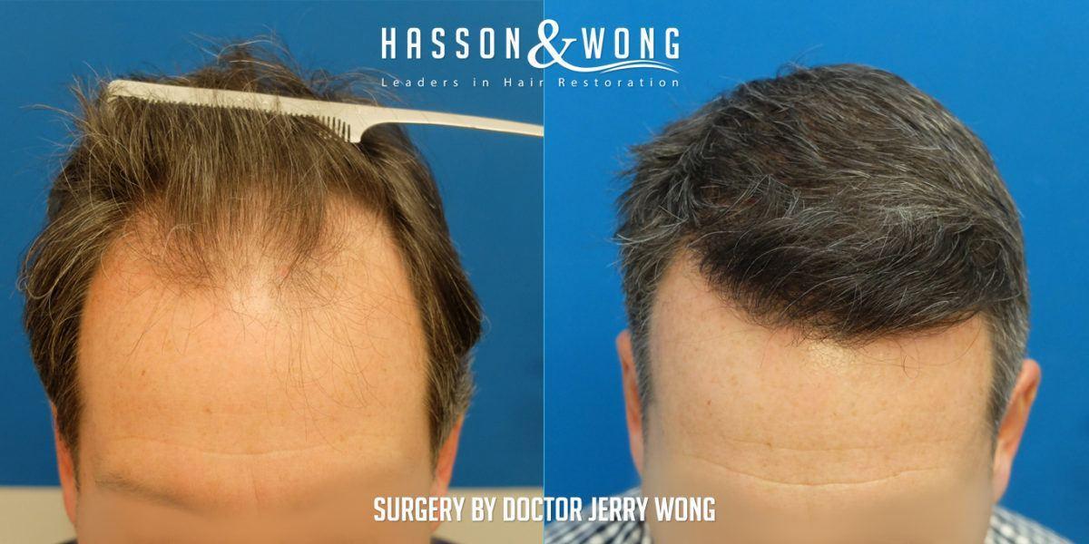 hair transplant graft count