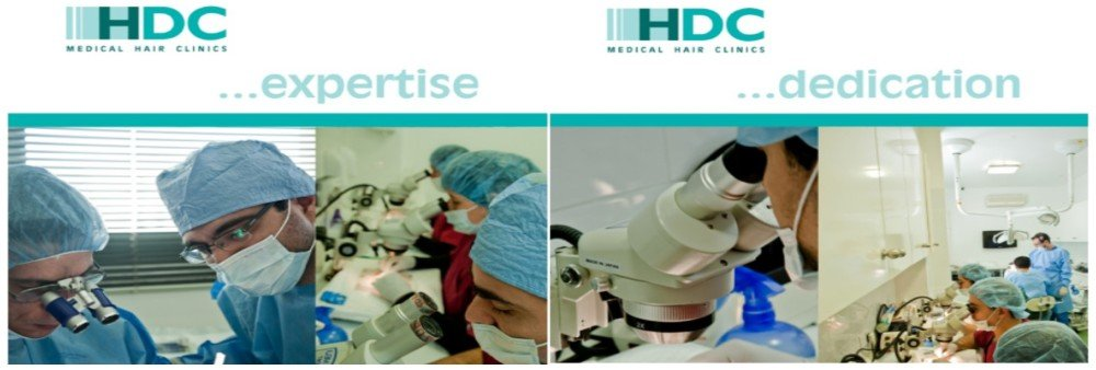 HDC Hair Transplant Cost - Cyprus