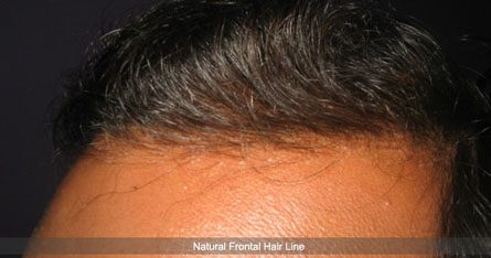 Hair Transplant Hairline Density