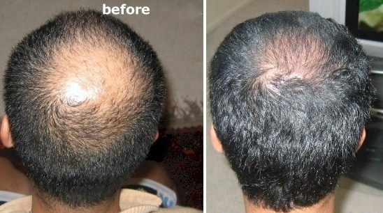 anti hair loss product