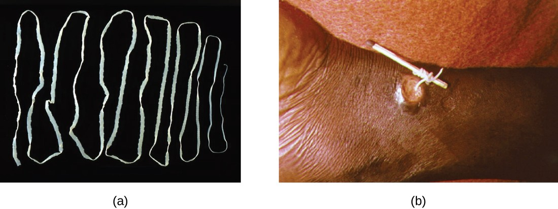 Figurea is a photograph of a long, flat, white worm folded back and forth on a black background. Figureb shows a lesion on a patient. A worm is being pulled out of the lesion and being wrapped around a matchstick